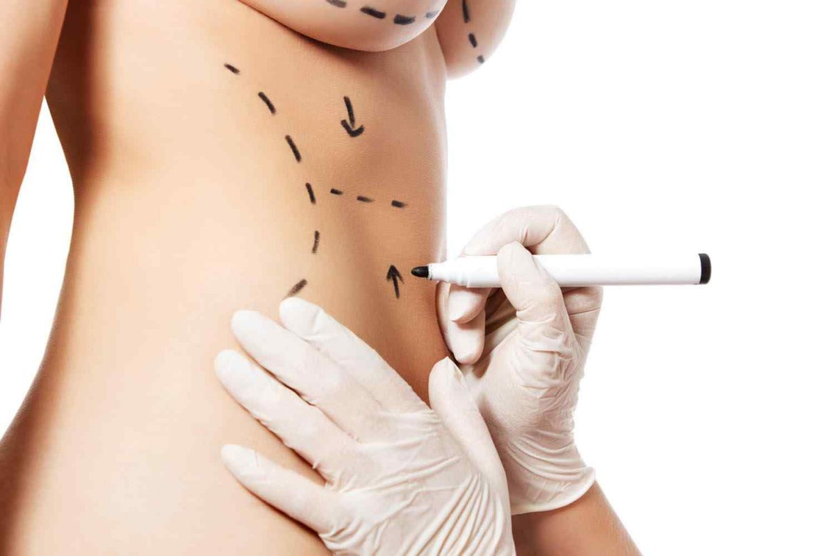 cosmetic-surgery-blog-11