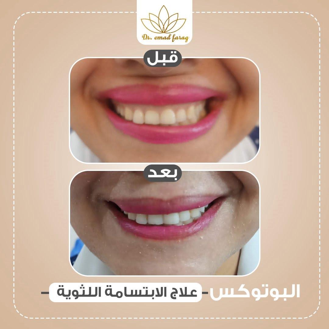 -علاج-الابتسامه-اللثويه.jpg