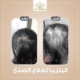 -علاج-الصلع-320x320-1.jpg